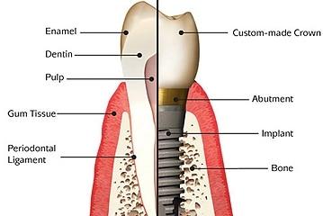 tooth repair