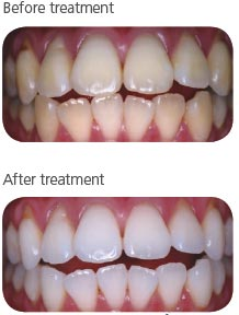 whitening_before_after