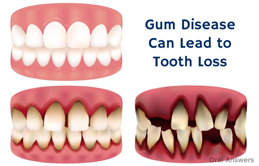 Gum Disease Tooth loss